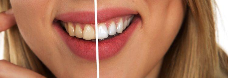 Frau hat nach Parodontologie Behandlung deutlich weißere und gesündere Zähne